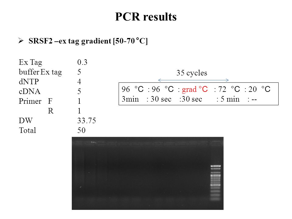 PCR results SRSF2 –ex tag gradient [50-70 °C] Ex Tag 0.3